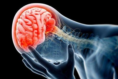 Mild Traumatic Brain Injury (or Concussion) Treatment Toronto