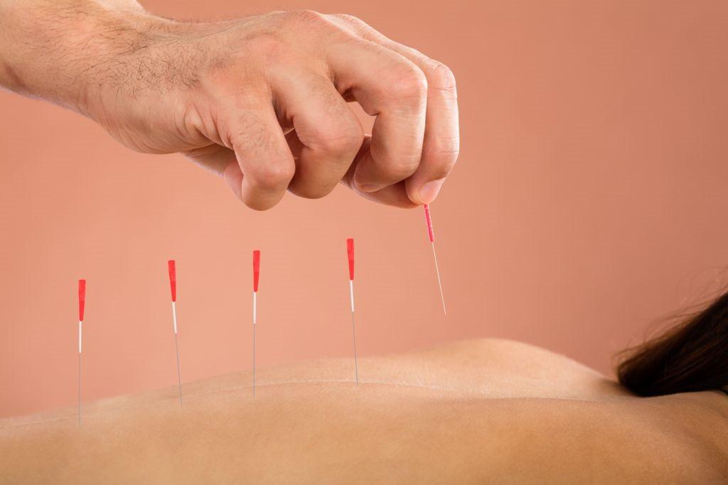 Registered acupuncturist in Don Mills