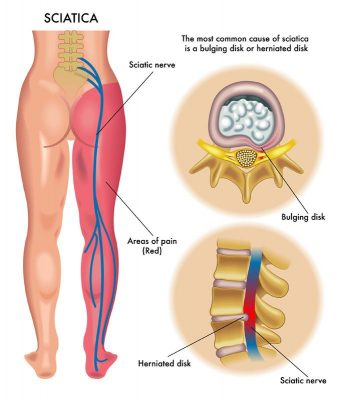 Sciatica treatment by physiotherapy